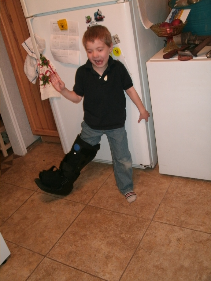 Christopher daning in my Air cast boot