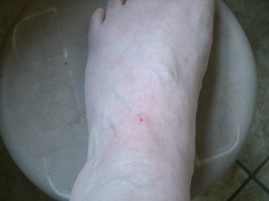 my foot with a fresh honey bee sting