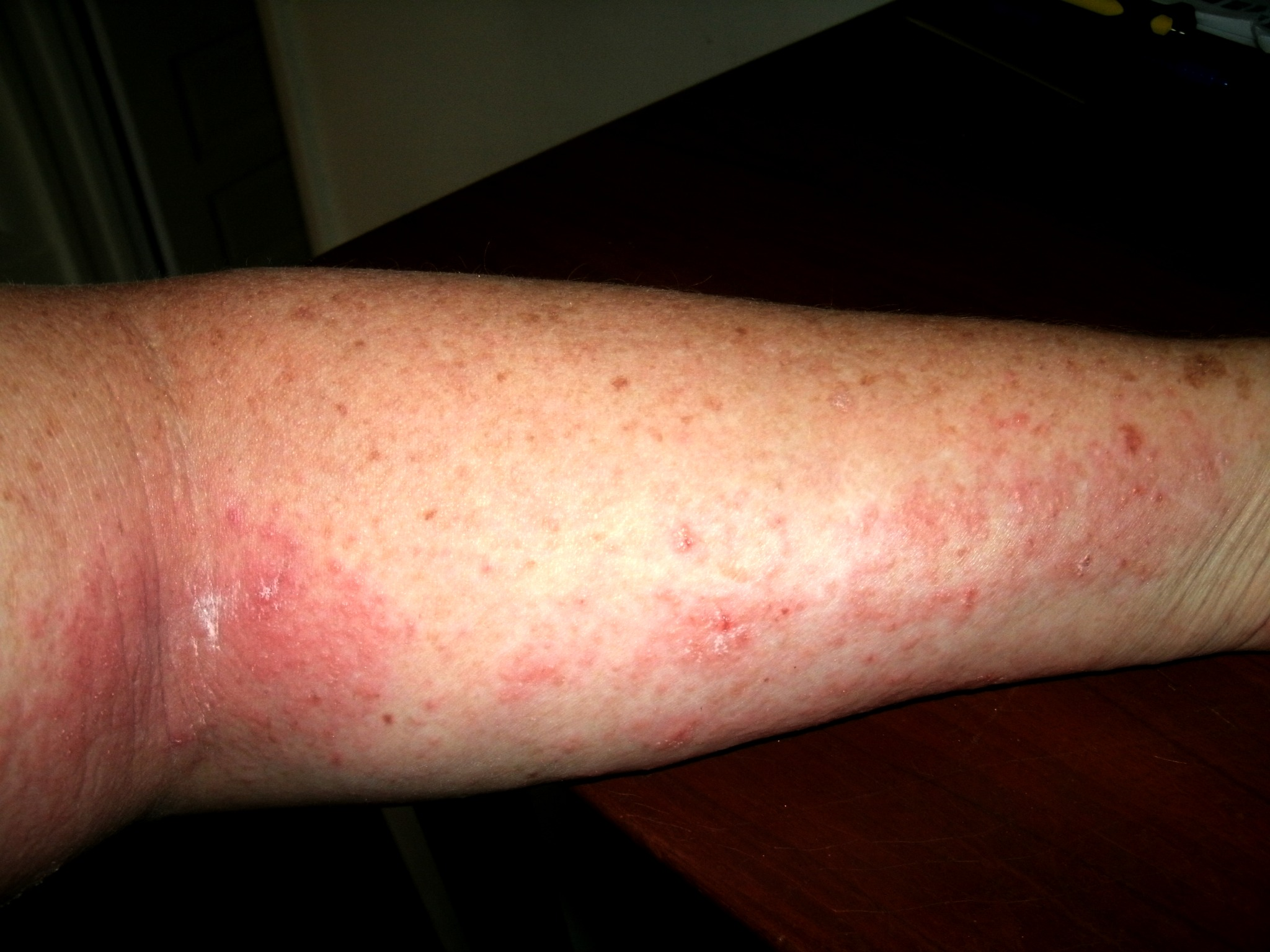 poison ivy on arm - pictures, photos