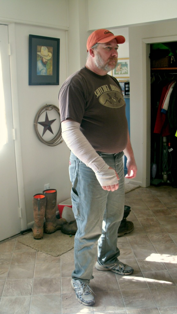 Tom Powers after one week check up and removal of half the bandages and packing Feb 2016